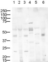 Western blot - Delta 1 antibody (ab10554)
