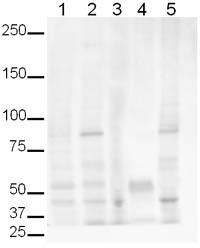 Western blot - Jagged 2 antibody (ab10556)