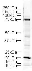 Western blot - LIM Kinase 1 antibody (ab10561)