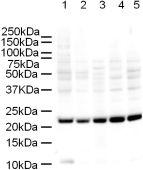 Western blot - Anti-Mad2L1 antibody [17D10] (ab10691)