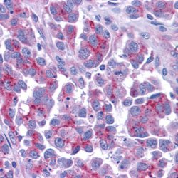 Immunohistochemistry (Formalin/PFA-fixed paraffin-embedded sections) - Smac / Diablo antibody (ab10919)