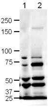 Western blot - Slit1 antibody (ab10984)