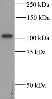 Western blot - alpha Actinin antibody [BM 75.2] (ab11008)