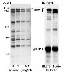 Western blot - MDC1 antibody (ab11170)