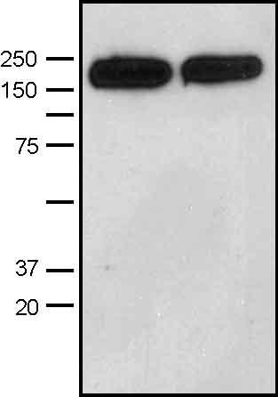 Western blot - DIAPH1 antibody (ab11173)