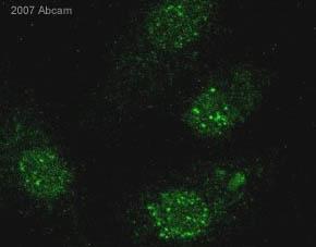 Immunocytochemistry/ Immunofluorescence - gamma H2A.X (phospho S139) antibody (ab11174)