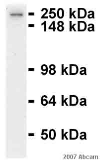 Western blot - alpha Fodrin antibody [D8B7] (ab11755)