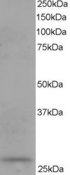 Western blot - DCXR antibody (ab11800)