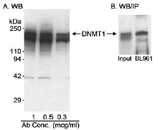 Western blot - Anti-Dnmt1 antibody (ab11891)