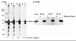 Western blot - Menin antibody (ab11894)