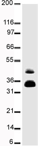 Western blot - Fos B antibody [83B1138] (ab11959)