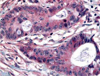Immunohistochemistry (Formalin/PFA-fixed paraffin-embedded sections) - Plk1 (phospho T210) antibody (ab12157)