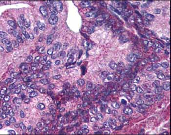 Immunohistochemistry (Formalin/PFA-fixed paraffin-embedded sections) - Apc1 (phospho S377) antibody (ab12206)