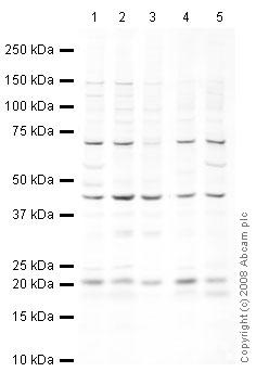 Western blot - UBE2C antibody (ab12290)