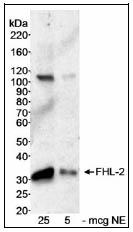 Western blot - FHL2 antibody (ab12328)