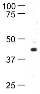 Western blot - Anti-RAD52 antibody [5H9] (ab12447)