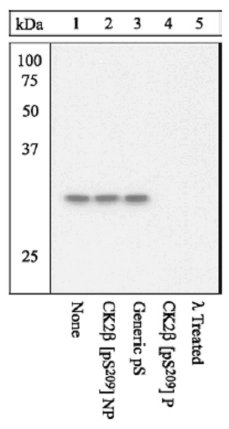 Western blot - Casein Kinase 2 beta (phospho S209) antibody (ab12861)