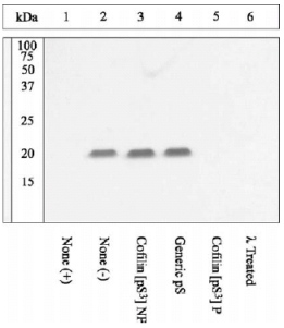 Western blot - Cofilin (phospho S3) antibody (ab12866)