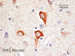 Immunohistochemistry (Formalin/PFA-fixed paraffin-embedded sections) - HUNK antibody (ab13016)