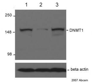Western blot - Dnmt1 antibody [60B1220] (ab13537)