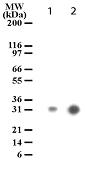 Western blot - ROCK1 Cleavage Site (1113/1114) antibody [154C1465] (ab13660)