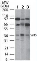 Western blot - SIRT5 antibody (ab13697)