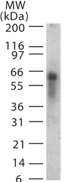 Western blot - ASB3 antibody (ab13715)
