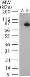 Western blot - Anti-Bacillus anthracis lethal factor antibody (ab13805)