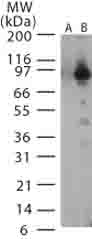 Western blot - Bacillus anthracis lethal factor antibody (ab13806)