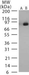 Western blot - Anti-Bacillus anthracis lethal factor antibody (ab13807)