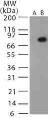 Western blot - Anti-Bacillus anthracis protective antigen antibody (ab13808)