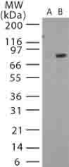 Western blot - Anti-Bacillus anthracis protective antigen antibody (ab13809)