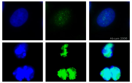 Immunocytochemistry/ Immunofluorescence - Anti-active + pro Caspase 3 antibody (ab13847)