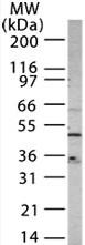Western blot - CXCR4 antibody (ab13854)