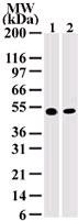 Western blot - IKK gamma antibody [72C627] (ab13917)