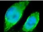 - ErbB2 antibody (ab14027)