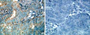 Immunohistochemistry (Formalin/PFA-fixed paraffin-embedded sections) - ErbB 2 antibody (ab14027)