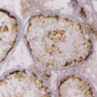 Immunohistochemistry (Formalin/PFA-fixed paraffin-embedded sections) - Anti-Inhibin alpha antibody [R1] (ab14087)