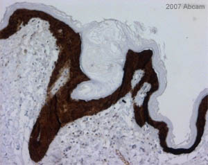Immunohistochemistry (Formalin/PFA-fixed paraffin-embedded sections) - 14-3-3 sigma antibody [1.N.6] (ab14123)