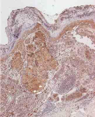 Immunohistochemistry (Paraffin-embedded sections) - NCOA3 antibody [0.T.198] (ab14139)