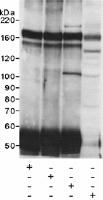 Immunoprecipitation - FKBP135 antibody (ab14434)