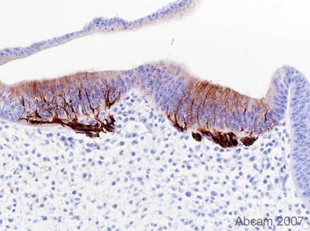 Immunohistochemistry (Formalin/PFA-fixed paraffin-embedded sections) - Anti-beta III Tubulin [TUJ-1] antibody (ab14545)