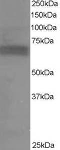 Western blot - S6K antibody (ab14708)