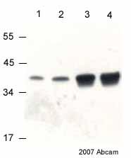 Western blot - VDAC1 / Porin antibody [20B12] - Mitochondrial Loading Control (ab14734)