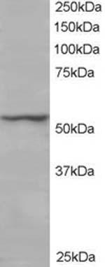 Western blot - Anti-ETEA antibody (ab14759)