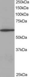 Western blot - Coronin 1a antibody (ab14787)