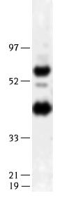 Western blot - LIPG antibody (ab14797)