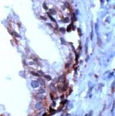 Immunohistochemistry (Formalin/PFA-fixed paraffin-embedded sections) - PSCA antibody (ab15168)