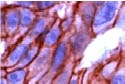 Immunohistochemistry (Formalin/PFA-fixed paraffin-embedded sections) - beta Catenin antibody, prediluted (ab15180)