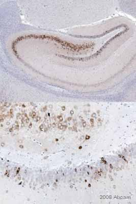 Immunohistochemistry (Formalin/PFA-fixed paraffin-embedded sections) - COX2 / Cyclooxygenase 2 antibody (ab15191)
